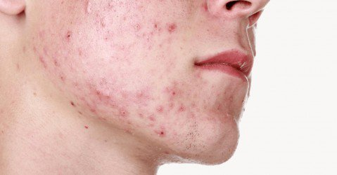 acné puranic